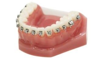 Orthodontic Braces Model