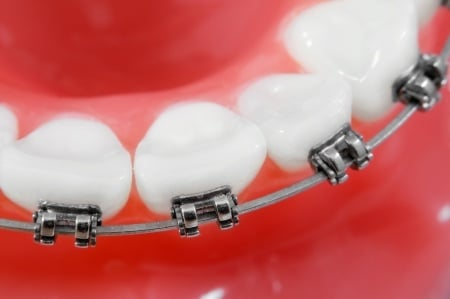 Braces Fitted Perfectly on Teeth