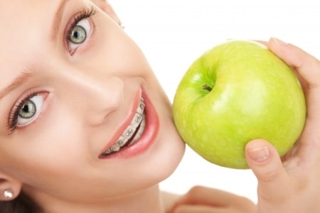 Young Lady in Braces with an apple