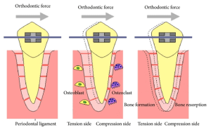 illustration of how braces work