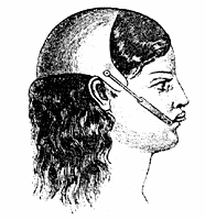 Illustration of head gear attached to braces