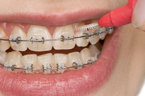 Lady uses an interdental brush between her teeth and braces