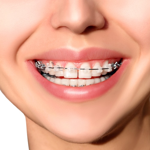 Ceramic braces on top teeth with metal braces on bottom teeth
