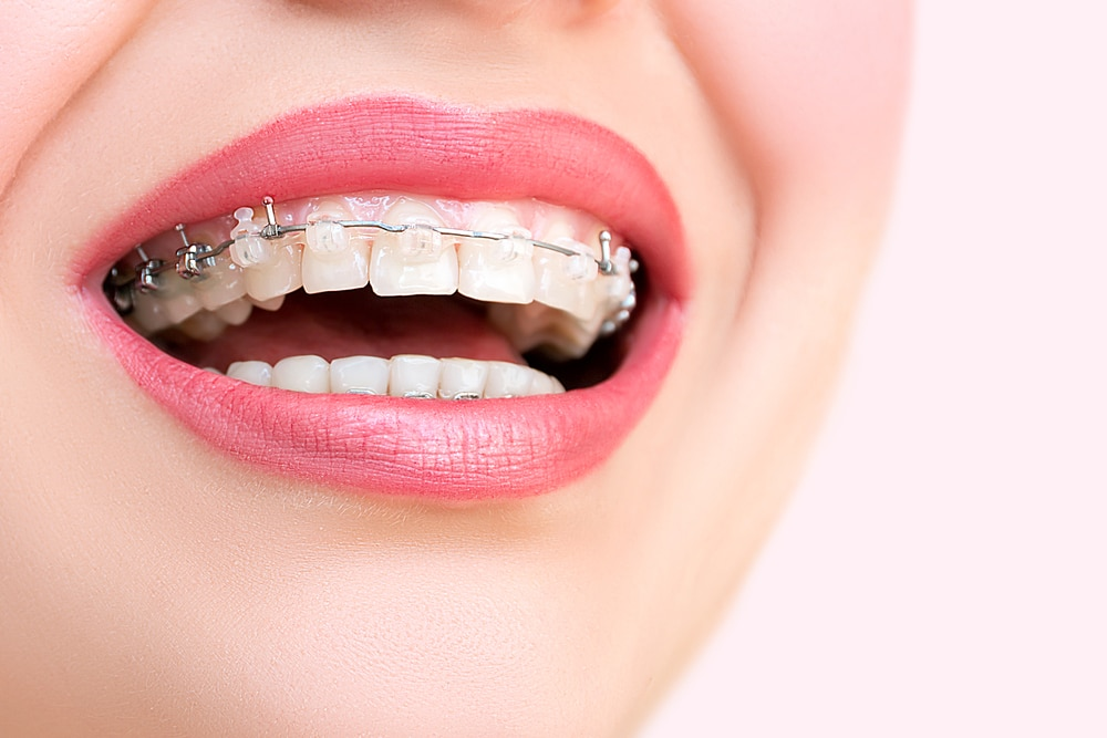 Ceramic self-ligating braces on smiling woman's teeth