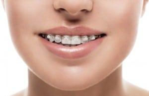 ceramic braces on front of teeth