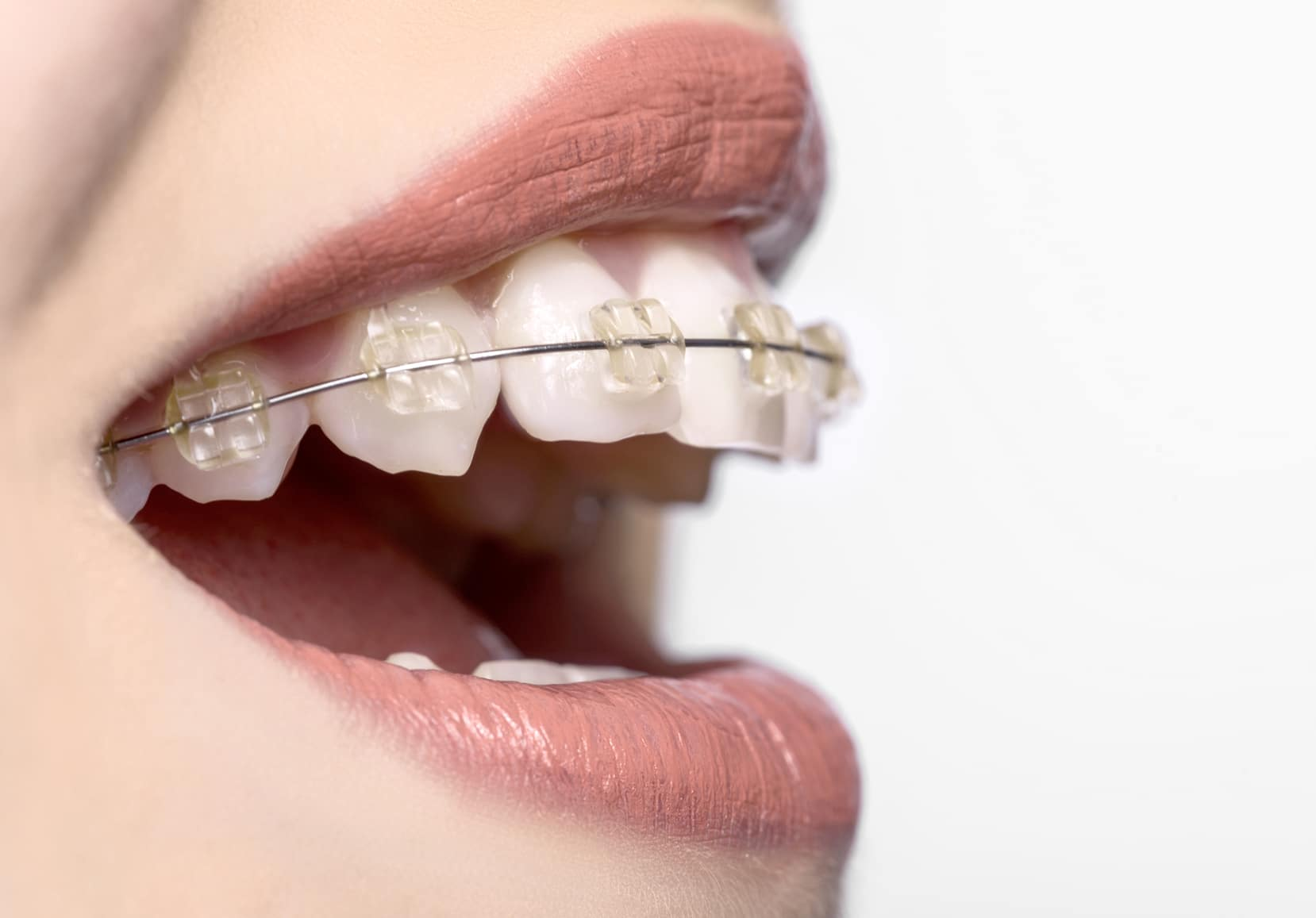 """What Is """"Accelerated Orthodontics,"""" And How Does It Work?   Orthodontic  Associates"""