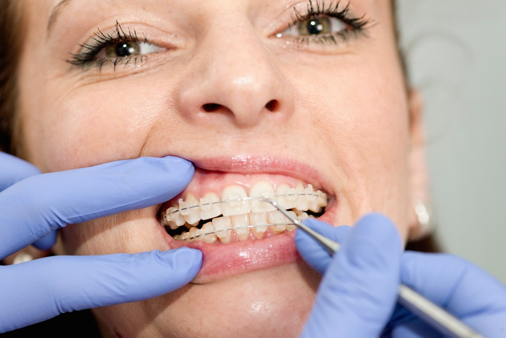 Woman having Braces adjusted by orthodontist