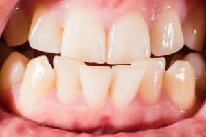 close up of a malocclusion and bad bite