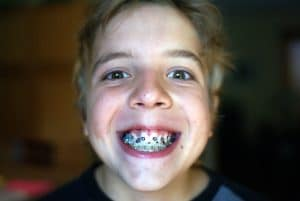 Young boy with severe malocclsuion with traditional braces