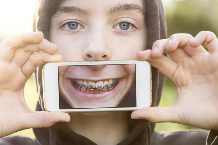Correct Jaw Surgery
