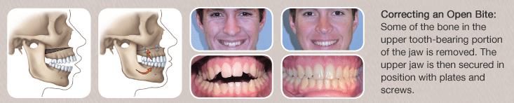 Jaw surgery on the top jaw before and after photos
