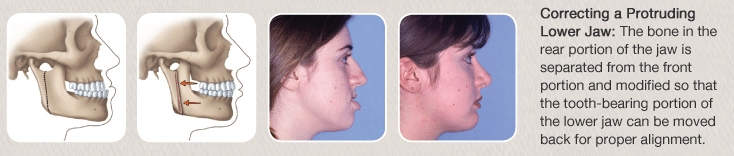 Crrective jaw surgery before and after on lower jaw