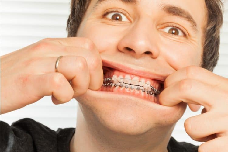 Man pulling lips apart to show traditional braces