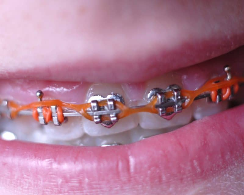 Close up of braces and power chains